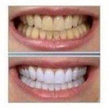Jak wybielić zęby papką z banana?   Weź kawałek wnętrza skórki banana i delik...