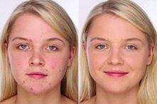 Jak naturalnie zakryć trądzik?   CEL: Makijaż bez grubej warstwy