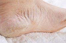 Na pękające stopy – surowego ziemniaka ścieramy na tarce, dodajemy startą surową cebulę oraz łyżkę śmietany. Całość mieszamy, dajemy do miski i trzymamy w tym stopy – wystarczy ...