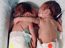 Noworodek objął swoją umierającą siostrzyczkę. To co stało się później wstrząsnęło całym światem!