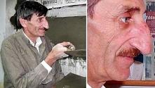 Najdłuższy nos... :D  Ma Mehmet Ozyurek, długość jego nosa ma prawie 9 cm.- współczuje, nie chciałabym mieć takiego długiego nosa