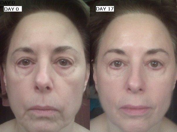 Efekty używania kosmetyków ageLOC marki Nu Skin! Niesamowite W razie pytań zapraszam :)