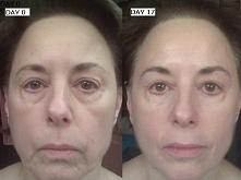 Efekty używania kosmetyków ...