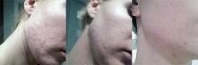 Efekt po trądzikowej kuracji miodem manuka MGO :)Nakładałam maskę oczyszczająca z miodem manuka MGO 600+, jadłam miód manuka MGO 400+. Taka zmiana o! :)