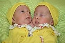 Będąc w ciąży z bliźniaczkami lekarze zalecili jej natychmiastową aborcję. Musiała podjąć dramatyczną decyzję.