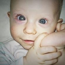 Jeszcze milion złotych...Tyle potrzeba aby uratować oczko i życie małej Hani.