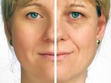Efekty laseroterapii w  EstetiCenter