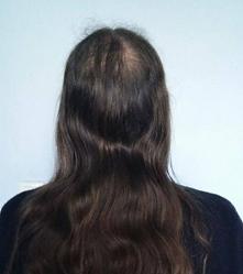 Warto kliknąć i zobaczyć jak można zatrzymać łysienie u mężczyzn.