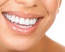 Wybielanie zębów efekty i metody, przeciwwskazania.