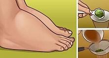 3 naturalne środki na opuchnięte stopy i kostki