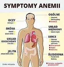 symptomy anemi