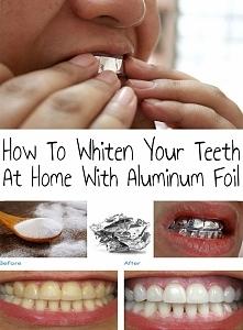 Wybielanie zębów w domu  Potrzebne są:  soda oczyszczona sól pasta do zębów f...
