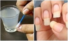 Co trzeba zrobić, żeby paznokcie rosły szybciej........... Czosnek.............