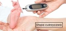 co to takiego stopa cukrzycowa