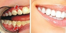 Jak usunąć płytkę nazębną z powierzchni zębów w zaledwie 5 minut! 4 naturalne...