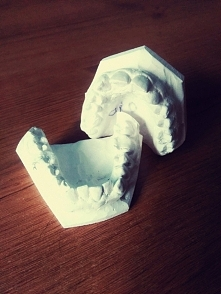 Pierwsza w życiu wizyta u ortodonty. Na czym to polega? Dentysta ogląda twoje...