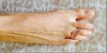 Codziennie wiązała dwa palce gumką – wynik okazał się zdumiewający