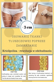 Redukcja tkanki tłuszczowej i cellulitu za pomocą kriolipolizy! Chcesz wiedzi...