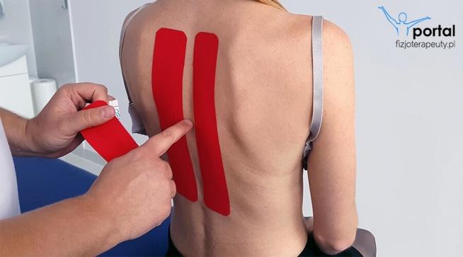 Kinesiotaping - odcinek piersiowy