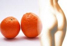Zioła zwalczające cellulit – najlepsze zioła w walce z cellulitem.