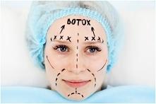 Botoks – najlepiej przebada...