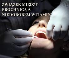 Związek między próchnicą a niedoborem witamin