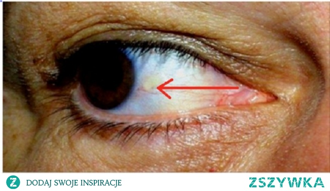 Twoje oczy mogą wskazywać czy zbliża się udar lub zawał serca