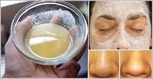 Użyj sody oczyszczającej, aby Twoja twarz i skóra były piękne!