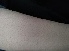 Dziewczyny, zawsze po goleniu zostają mi takie czerwone kropki. Nie są ani wypukłe ani bolące po prostu są. Nogi gole maszynka wcześniej robiąc peeling i po goleniu też robię pe...