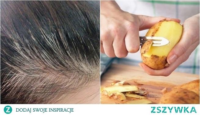 Pozbądź się siwych włosów wykorzystując tylko jeden składnik
