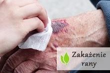 Zakażenie rany - objawy i l...