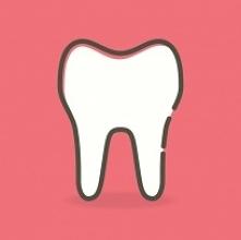 Resekcja korzenia zęba po z...