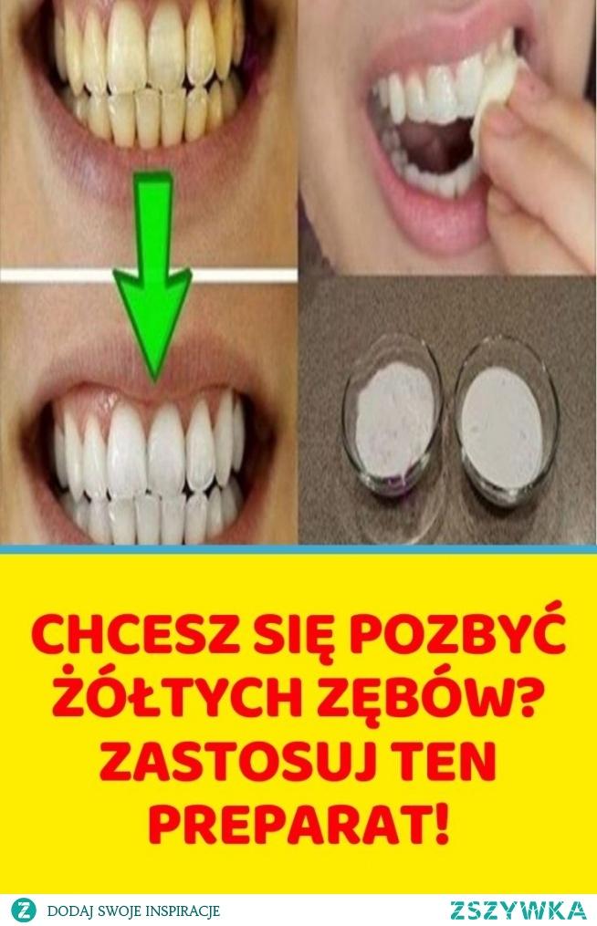 Chcesz się pozbyć żółtych zębów? Zastosuj ten preparat!