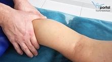 Drenaż limfatyczny - metodyka i techniki