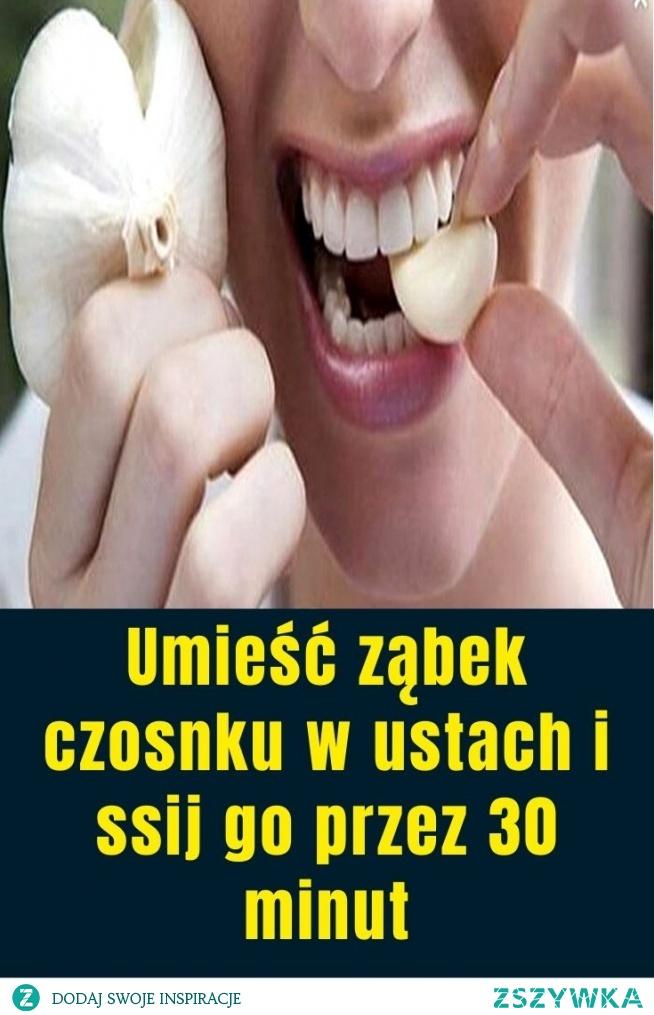 Umieść ząbek czosnku w ustach i ssij go przez 30 minut
