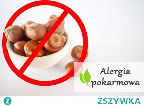 Alergia pokarmowa - czym jest?