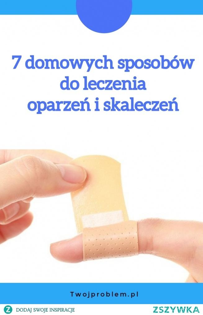 7 domowych sposobów do leczenia oparzeń i skaleczeń