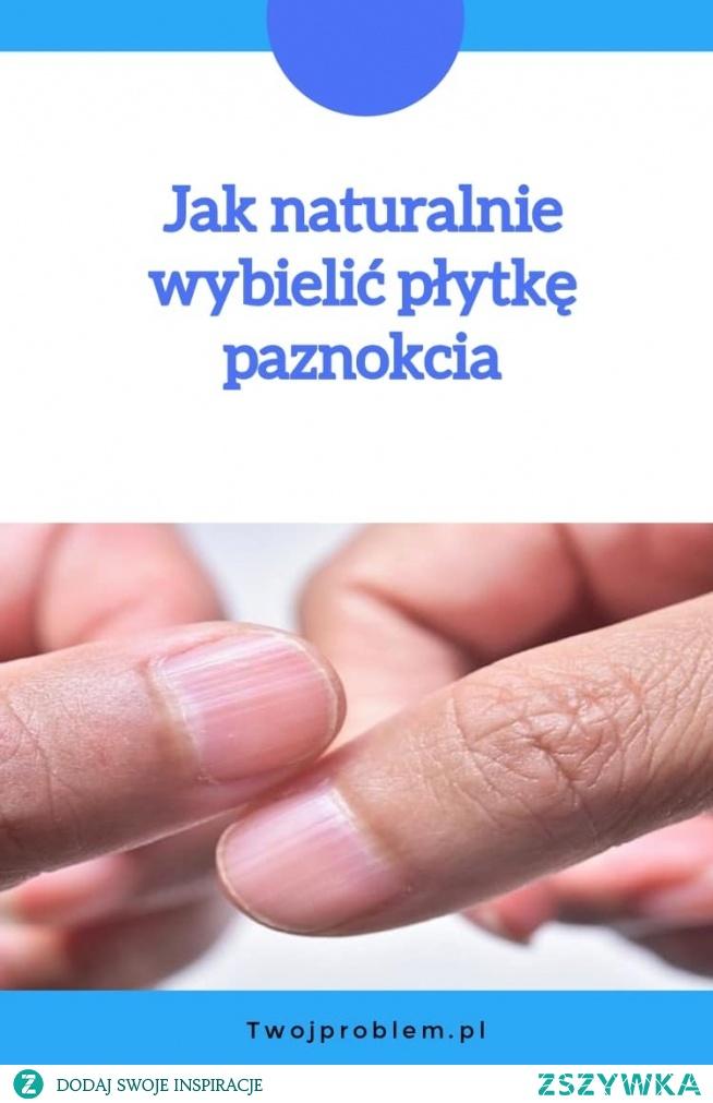 Jak naturalnie wybielić płytkę paznokcia