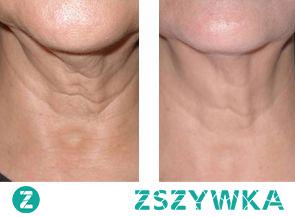 """ImpreSkin to rewolucyjny preparat, który redukuje i spłyca zmarszczki. Powstał z myślą o kobietach dojrzałych, które marzą o jędrnej i pełnej blasku skórze. ImpreSkin nie """"maskuje"""" oznak starzenia się skóry na zewnątrz, działa na poziomie komórkowym, dlatego też jest tak skuteczny: wygładza, wzmacnia oraz napina skórę zapewniając jej optymalne nawilżenie.  Wyraźna poprawa stanu skóry twarzy następuje po około 4 tygodniach regularnego zażywania preparatu. Zaleca się przyjmować dwie kapsułki dziennie.  Dawkowanie:  Dwie kapsułki dziennie podczas posiłku.  Skład:  D-alpha-tocopheol, Hydrolizowany kolagen, kwas L-askorbinowy, witamina K, flawonoidy"""