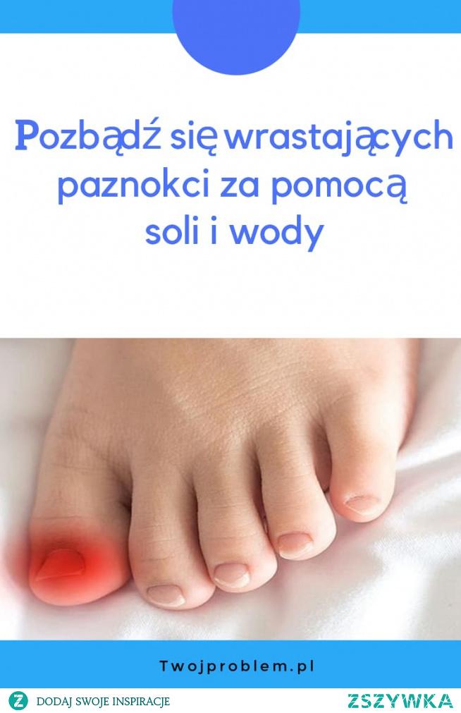 Pozbądź się wrastających paznokci za pomocą soli i wody