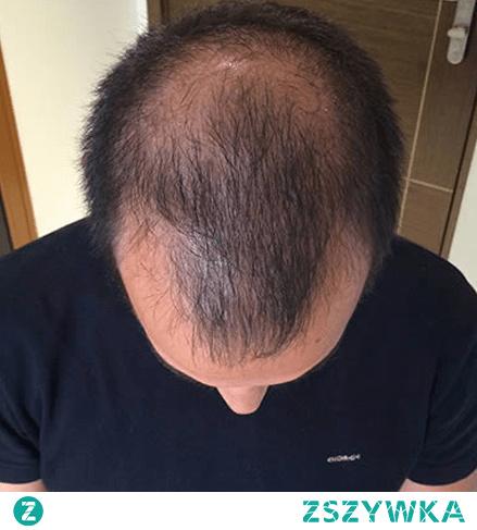 Powody, dla których włosy wypadają związane są z wieloma czynnikami – zarówno zewnętrznymi, jak i wewnętrznymi. Nasz organizm to skomplikowana maszyna, w której każdy z procesów wpływa na pozostałe. Źle zbilansowana dieta, stres, problemy hormonalne czy po prostu geny – wszystkie te czynniki mogą zakłócić cykl wzrostu włosów i przyspieszyć ich wypadanie.