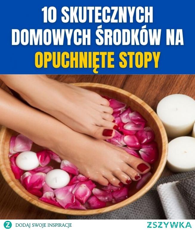 10 skutecznych domowych środków na opuchnięte stopy