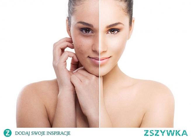 Peeling Skin Obagi na przebarwienia skóry twarzy