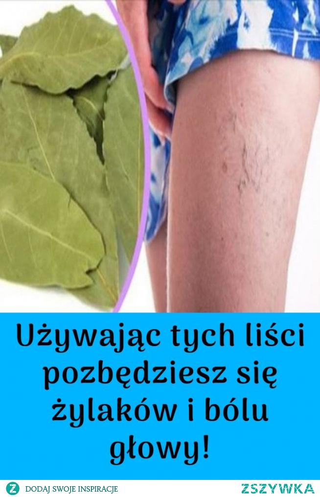 Używając tych liści pozbędziesz się żylaków i bólu głowy!