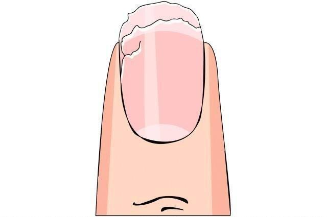 Jak zrobić domową maseczkę na zniszczone paznokcie  Rzeczy, które potrzebujesz: średniej wielkości ogórek, połówka cytryny, pół jabłka  1. Zetrzyj ogórek i jabłko na tarce. Użyj do tego drobnych oczek.  2. Wyciśnij sok z cytryny i dodaj do powstałej w kroku poprzednim papki.  3. Teraz zanurz palce w maseczce. Wystarczy, jeśli zamoczysz tylko paznokcie. Trzymaj je w niej przez około 15-20 minut. Po tym czasie na pewno zauważysz efekt.  4. Maseczka działa naprawdę skutecznie. Produkty w niej zawarte dzięki swoim właściwościom znacznie polepszają kondycję i wygląd naszych paznokci.  Sok z ogórka wzmacnia strukturę paznokci i nadaje im połysk.  Sok z cytryny jest szczególnie korzystny w przypadku miękkich, łamliwych i rozdwajających się paznokci. Wyraźnie utwardza płytkę paznokcia, dzięki czemu paznokcie nie łamią się i nie rozdwajają. Dodatkowo wygładza on paznokcie i nadaje im zdrowy blask.  Jabłko również posiada właściwości, które wzmacniają nasze paznokcie. Rozświetla je oraz przyspiesza proces ich regeneracji. Dzięki zawartości dużej ilości pektyn bardzo dobrze nawilża paznokcie i dłonie.