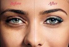 JAk zlikwidować cienie pod oczami: 1. Umyj twarz stosując delikatny środek do mycia twarzy przy użyciu zimnej wody. 2. Nawilż całą twarz, zwłaszcza wokół oczu. 3. Wybierz korekt...