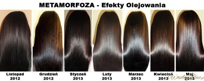 jak stosować olejek rycynowy na wypadające włosy
