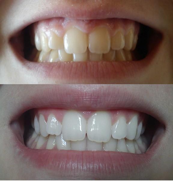 Wybielanie zębów paskami Crest Whitestrips Supreme naprawdę działa ;D Zamówiłam sobie 7 saszetek tych pasków i tyle mi wystarczyło żeby zęby znacznie się wybieliły. Już po trzecim dniu stosowania paków zobaczyłam różnice. Nie są one śnieżnobiałe ale jak za taką cenę (40 zł na allegro)to jestem bardzo zadowolona ;D Tak czwartego dnia pojawiła się delikatna nadwrażliwość ale kupiłam sobie odpowiednią pastę i teraz jest wszystko w porządku. Polecam każdemu kto chce sobie wybielić zęby niewielkim kosztem ;)