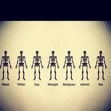 Człowiek to człowiek nie ważne czy to gej czy ciemno skóry też ma uczucia .... Proste ?