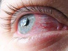 Kochani,mam problem z przekrwionymi oczami,od 4 lat nosze soczewki,uzywam kropli do oczu.Dzieje sie tak dopiero od niedawna.Ciężko jest mi sie z tym uporać..Pytanie do Was czy n...
